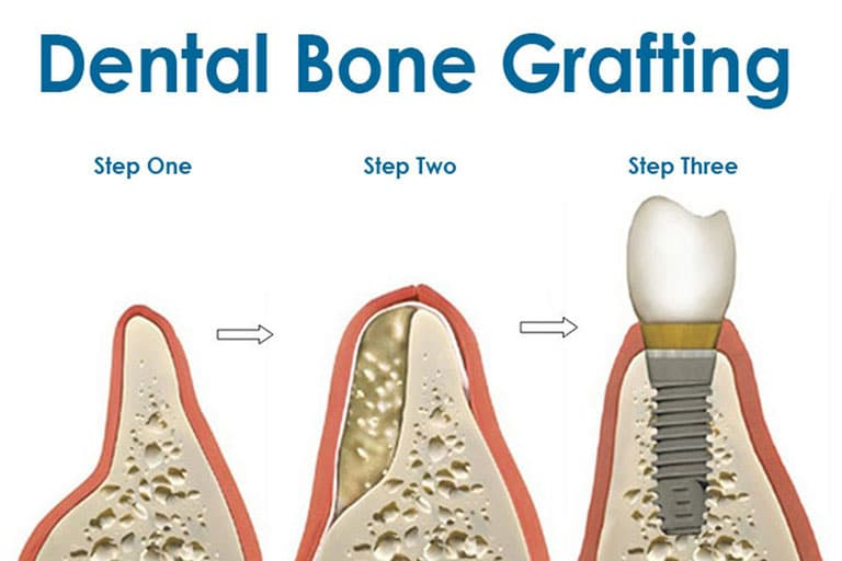 dental bone grafting irvine
