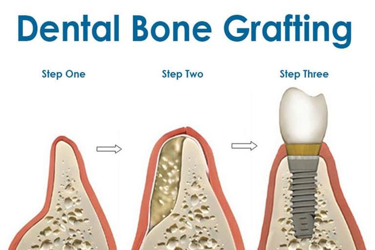 dental bone grafting irvine