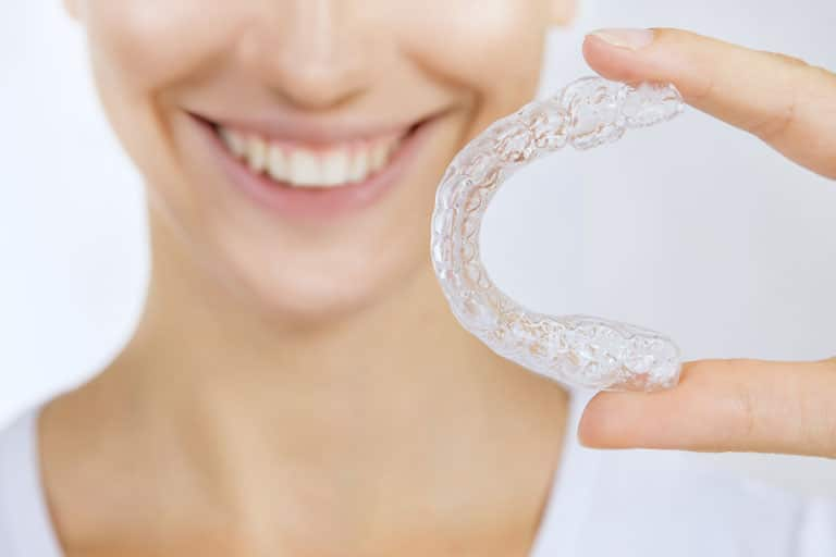 invisalign clear braces irvine