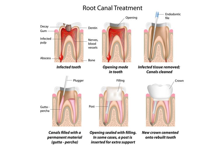 root canal treatment irvine