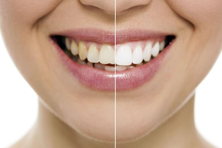 teeth whitening irvine