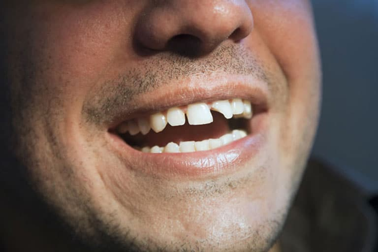 emergency dental care irvine orange county